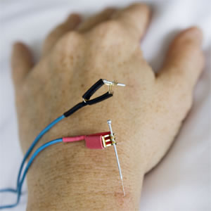 Electroacupuncture_hand